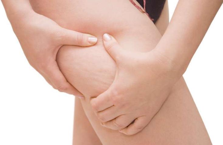i-trattamenti-anticellulite-piu-efficaci-a-bologna