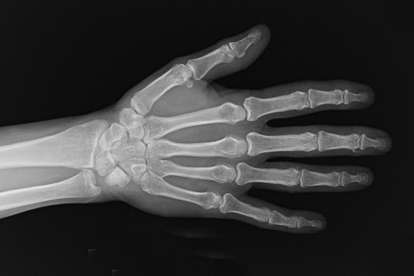 diagnostica-per-immagini-a-parma-a-chi-rivolgersi